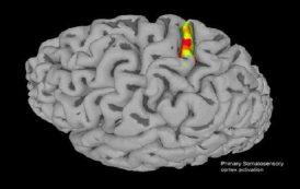 ایمپلنت مغزی حس لامسه را به بیمار آسیب نخاعی باز گرداند