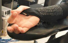 بازگشت توانایی دست افراد کوادریپلژی با تحریک عصبی