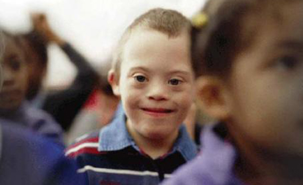 نحوهی پذیرش معلولان کمتوان ذهنی در مراکز نگهداری