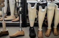 تولید و تعمیر اندام های مصنوعی در جمعیت هلال احمر قزوین آغاز شد