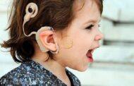 مراکز کاشت حلزونی شنوایی